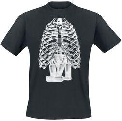 Röntgenbild - Bierflaschen